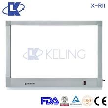 X-RII Aluminium Alloy X-Ray Film Illuminator led x ray light box