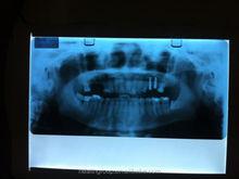 Fuji x ray film protection