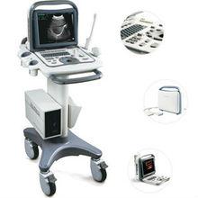 Sonoscape FDA CE Certificated Portable Black and White Ultrasound equipment A6