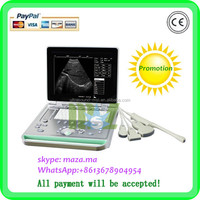MSLPU24T High-tech LCD Screen Portable Ultrasound Machine Price For Pregnancy with CE