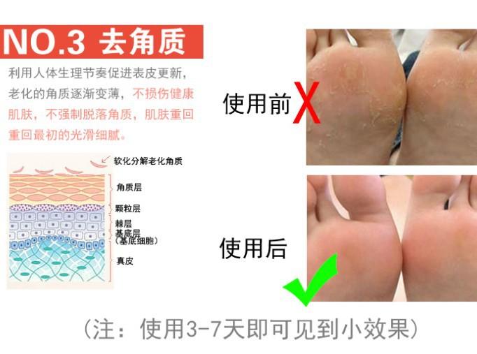 силиконовый протектор пятки унисекс увлажняющий отбеливания трещин стельки облегчить уход за ногами боль трещины пятки