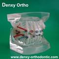 los materiales de ortodoncia de moda de ortodoncia dental modelo de estudio