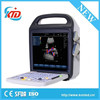 Brand New 15 inch LCD monitor digital color doppler ultrasound machine export import china