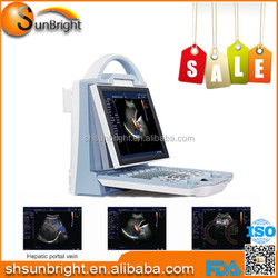 Top quality cost-effective laptop/Portable color doppler ultrasound system