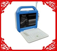 ATNL51353A-LCD Digital Laptop Ultrasound Scanner/Cheapest device/portable ultrasound scanner price