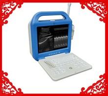 ATNL51353A-LCD Digital Laptop Ultrasound Scanner/Cheapest device/portable ultrasound scanner price