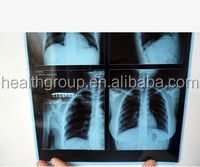 Japan x ray medical dry laser x-ray imaging film 14*17/10*14/8*10/film processor/dry film/Kodak/blue base medical