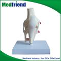 Mfm012 venta al por mayor de China de la mercancía de la rodilla esqueleto