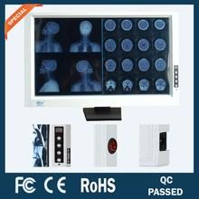 two/double/dual screen/panel/bank Medical X-ray Illuminator
