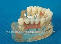 Dental crown price/zirconia dental implant Crown