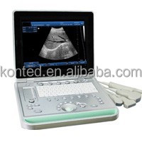 Full digital laptop black and white ultrasound scanner portable models