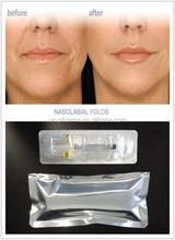 Plastic CE approved Hyaluronic Acid Injection Filler 1ml for lips