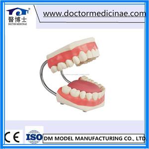 Cuidados De Enfermería médica Dental Modelo, diente Modelo De Enfermería, 5 veces Ampliada Modelo de Atención Dental