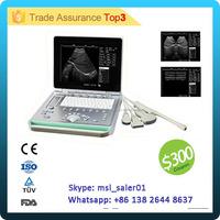 MSLPU24P Portable Ultrasound Scanner Price / Zero Complaint Ultrasound Machine Cheaper than Mindray