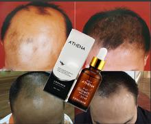 mejor tratamiento producto de la pérdida del cabello de China