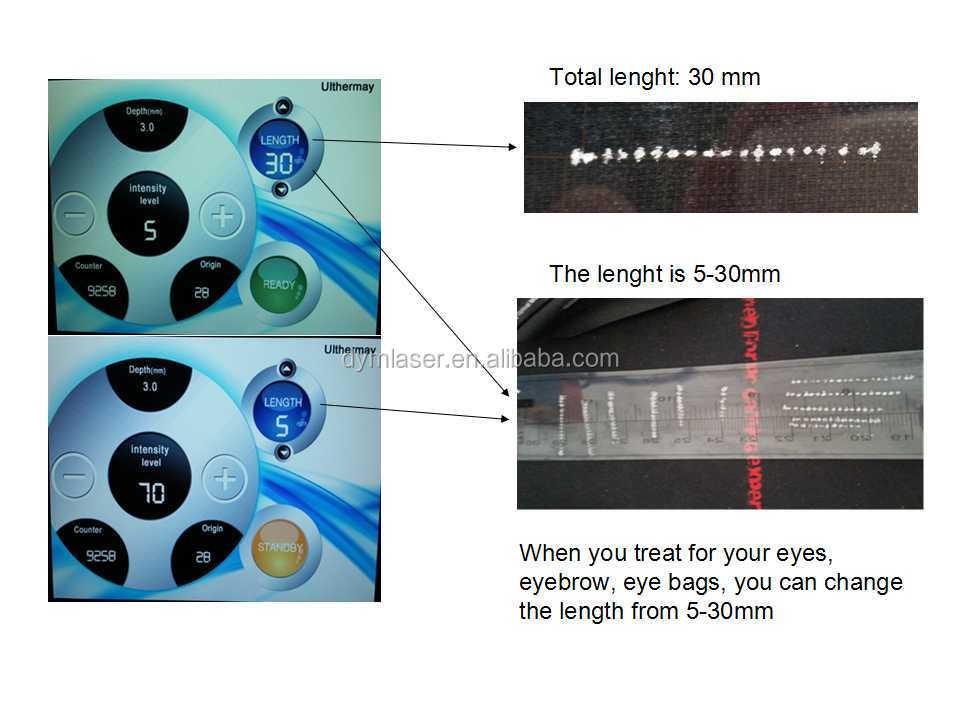 Mhzのショット74mhz20000垂直2014年最新技術高強度集束超音波( hifu) 目の袋の除去仕入れ・メーカー・工場