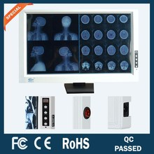 two/double/dual screen/panel/bank medical brightness adjustable led x-ray film viewer/viewing box