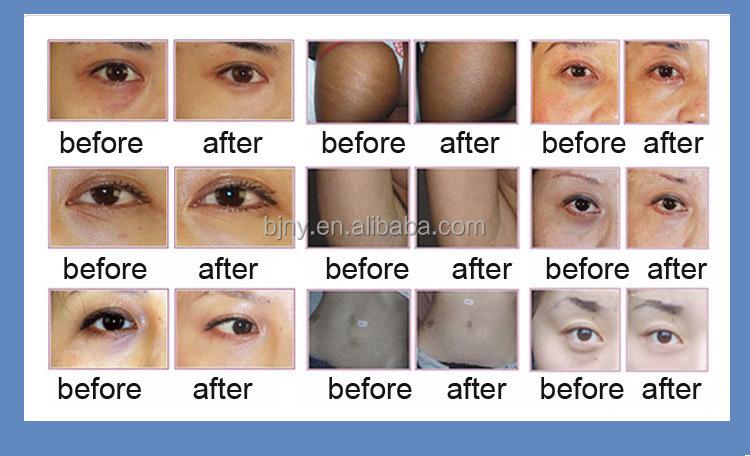 Glutathione Injection Whitening Skin Glutathione Skin Whitening