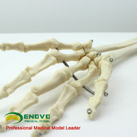 Natural Size Male Upper Limb Skeleton Model for Medical School Education