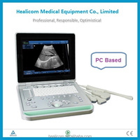 HUSS-9 PC based portable medical diagnostic 3D ultrasound machine price
