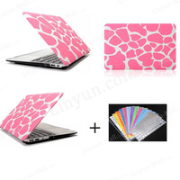 """Laptop Rubberized Hard Case Keyboard Skin for Macbook Air 11.6"""" 13.3"""", Shell PC Cover Colour Case for Macbook Air"""
