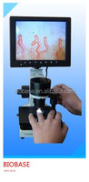 High quality ,Nailfold Capillary Microscopy Color Microcirculation Microscope video microcirculation microscope