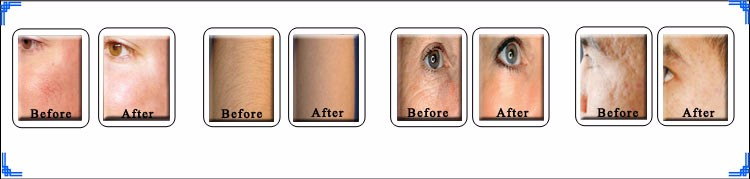 wrinkle pigmentation removal face lift.jpg