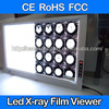 CE approved three section white negatoscope x ray illuminator medical LED X-ray film viewer