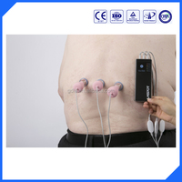 Handheld household laser cupping pain relief laser acupuncture therapy equipment