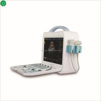 Handheld Color Doppler Ultrasound System , High-density Color Doppler