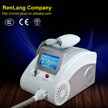 laser tattoo removal uk/laser tattoo remove/ophthalmic yag laser