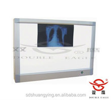 Hot sale x-ray film viewer
