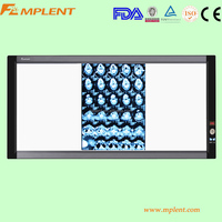 Film sensor super slim Medical x ray viewer