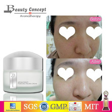 black spots removal skin whitening cream