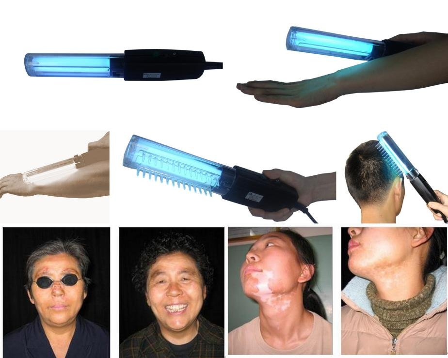 In psoriasis, UVB phototherapy has been shown to be effective 2