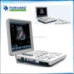 Doppler Ultrasound Equipment,color ultrasound Type color portable ultrasound machine