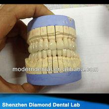 coronas de zirconia dentales