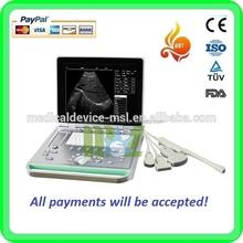Cost-effective prices portable doppler ultrasound machine & ultrasound scanner (MSLPU24-G)